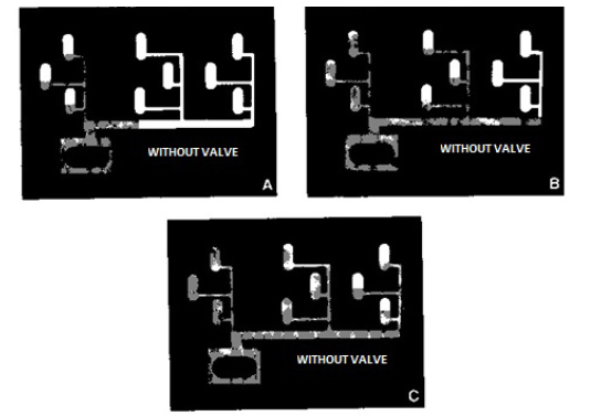 without-valves